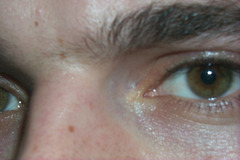 L'oeil vif