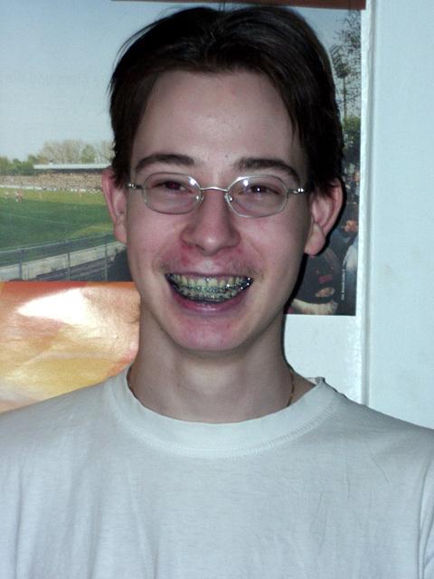 Blue teeth-brother