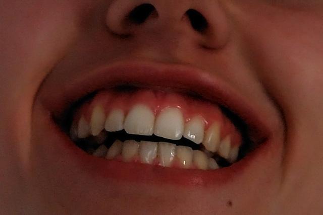 No braces!