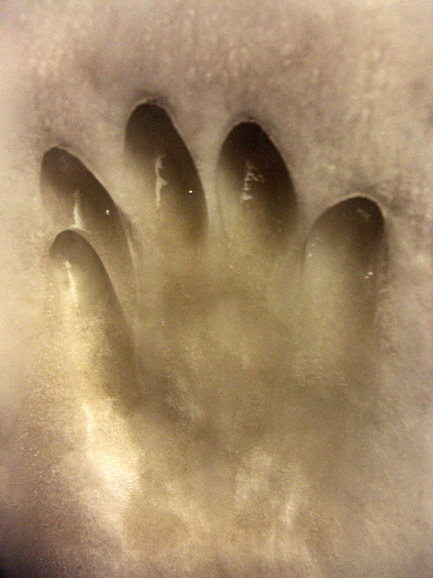 cold hand