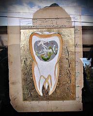 Ottoman wisdom tooth