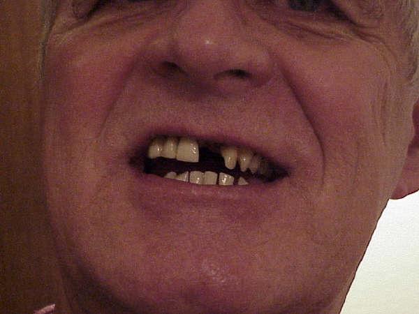 ToothlessMountainMan