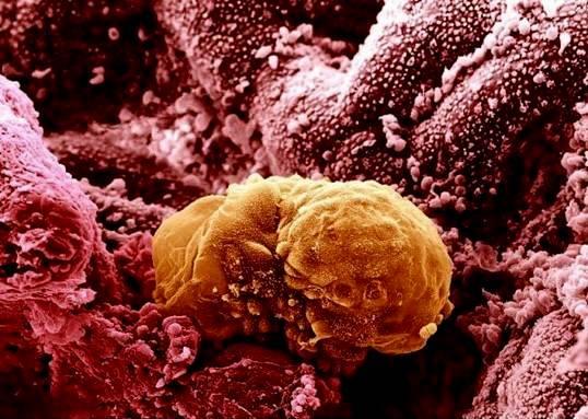 Human Embryo 6 Days Old