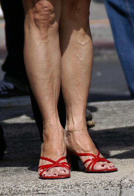 BP heels (F)