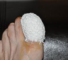 Käthe's wounded sexy foot / Le pied sexy et blessé de Käthe - Bovist .