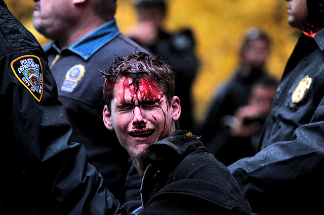 Bloody Protester - New York City