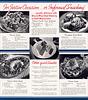 Kraft Miracle Whip/Mayonnaise Ad (2), c1933