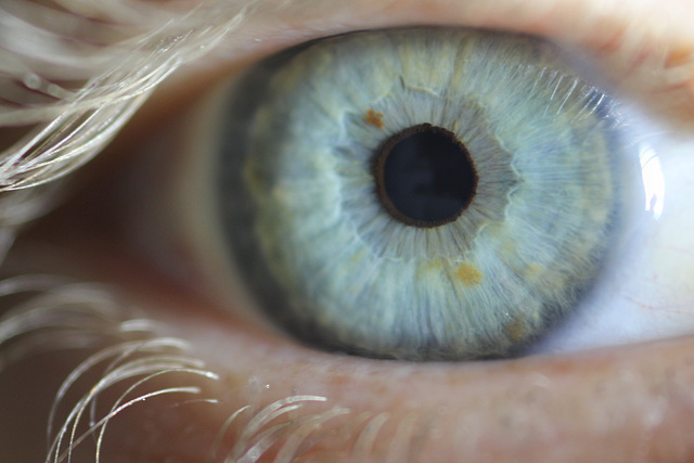 MM: Auge