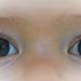 13.11.17  -  Augen