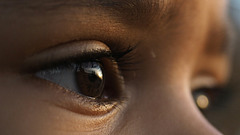 Auge mit PiP